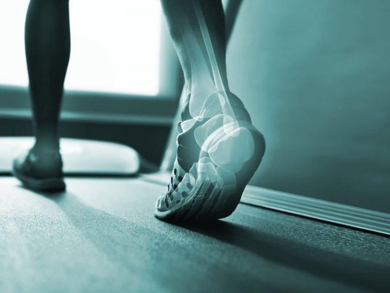 Fisioterapia na Análise e Reeducação Funcional do Movimento
