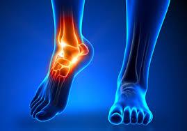 Saiba tudo sobre lesões no tornozelo